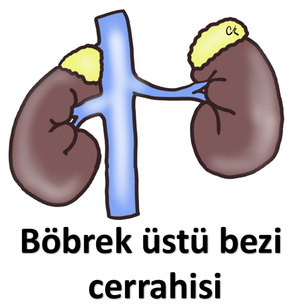 Böbreküstü Bezi Cerrahisi