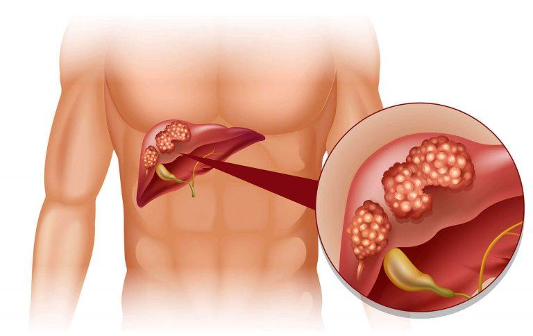 Karaciğer Metastazı