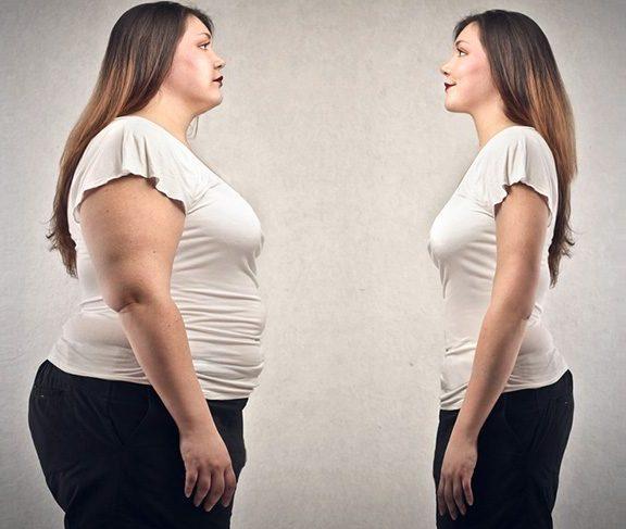 Obezite Cerrahisinde Kullanılan Yöntemler