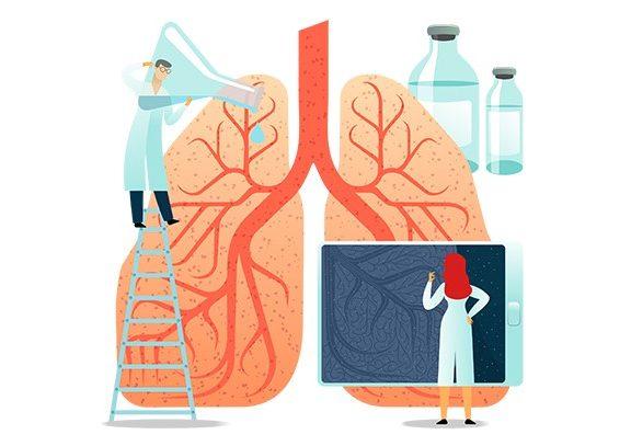 Akciğer Kanseri Tedavisi Var Mı